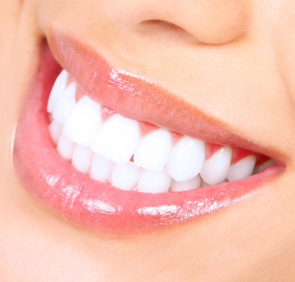Teeth Whitening Glenview