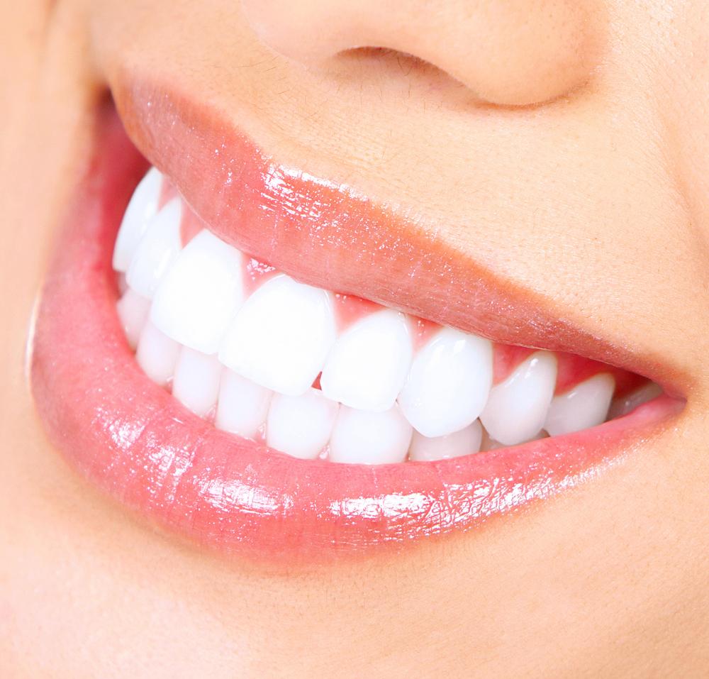 Teeth Whitening Glenview